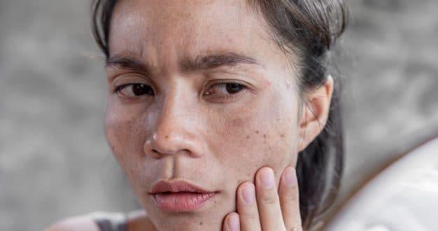 5 modi per trattare il melasma in gravidanza