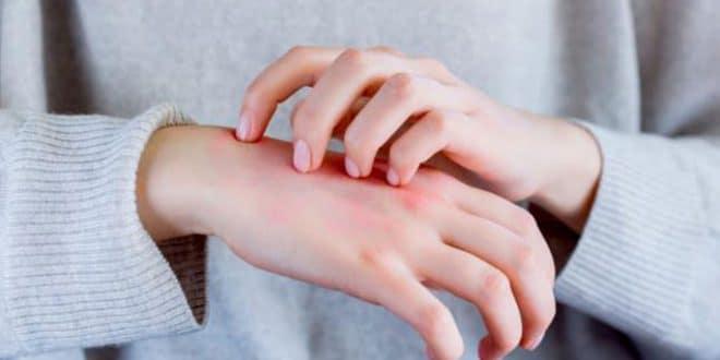 10 sintomi di malattia epatica primaria