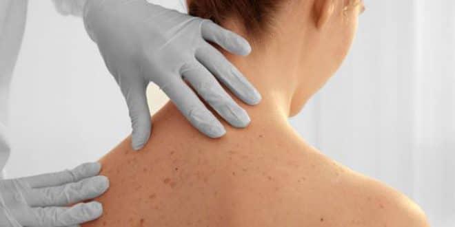4 modi per sbarazzarsi dei tag della pelle