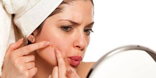 5 ricette naturali per l'acne