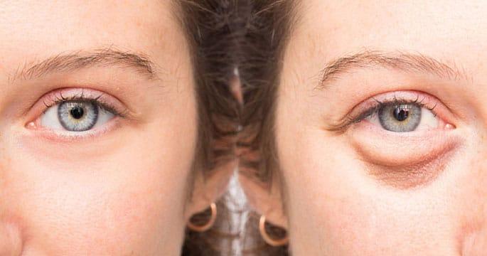 Ridurre il gonfiore degli occhi