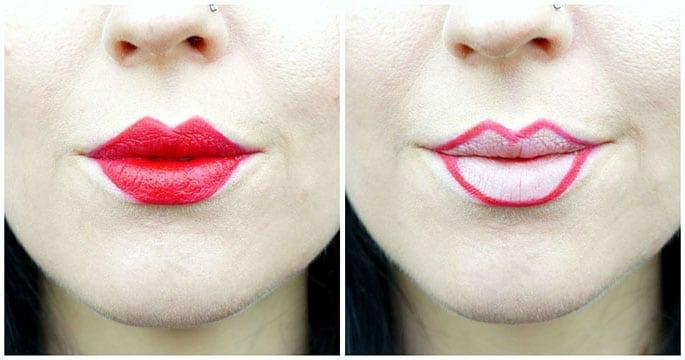 Contorno di riduzione delle labbra