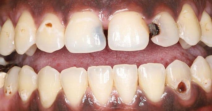 Carie dei denti anteriori- carie dei denti anteriori dalle radici