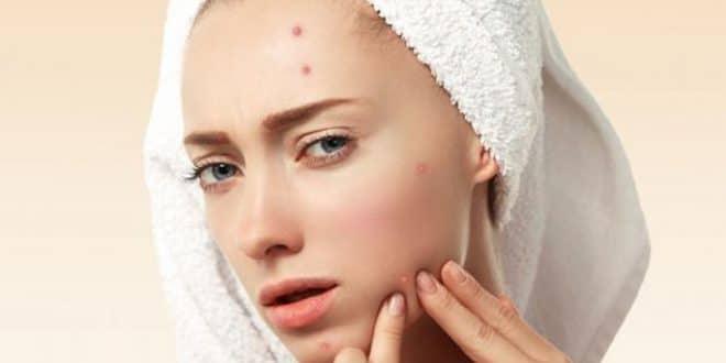 6 modi per curare l'infezione da acne