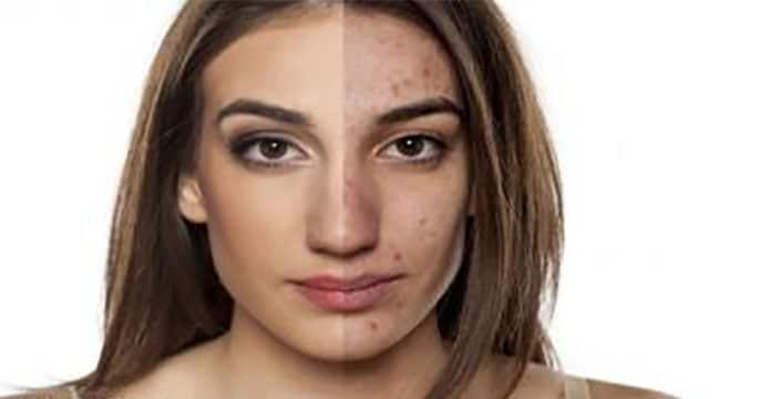 Miscele per l'acne