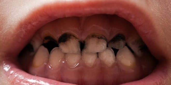 Come si verifica la carie dei denti anteriori?