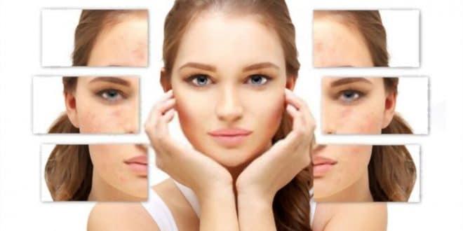 Maschera per l'acne