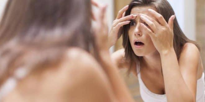 Trattamento contro l'acne per la pelle grassa